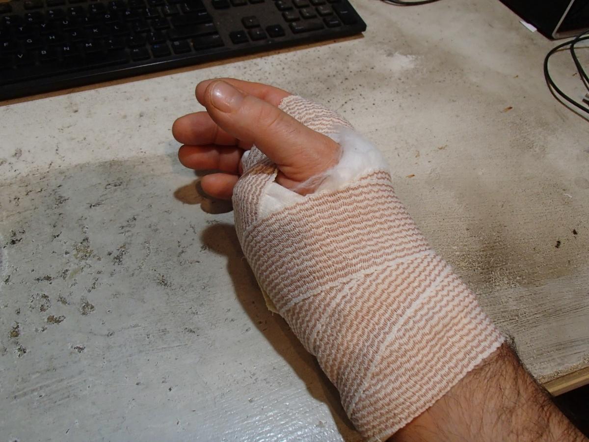 surgery time tomorrow...-p2040040.jpg